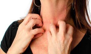 Аллергия на коже — виды, причины, лечение