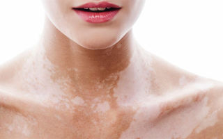 Причины и лечение белых пятен на коже