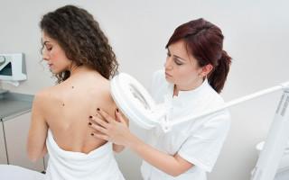 Причины и лечение вируса папилломы у женщин
