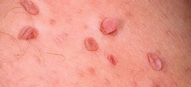 Какие бывают наросты на коже и как они выглядят?