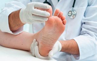 Как выглядят сухие мозоли на ногах на фото и как их лечить?