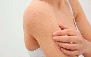 Виды и лечение прыщиков на плечах у женщин