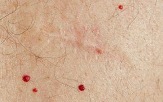 Кровяные точки на теле: почему возникают и как лечить?