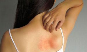 Разновидности дерматита и их лечение