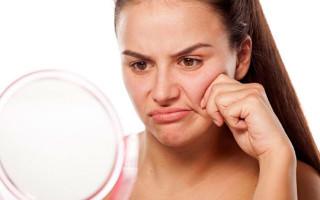Как самостоятельно подтянуть щеки на лице?