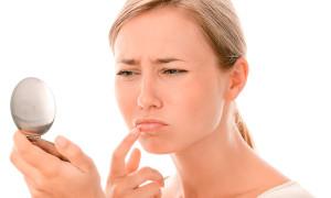 Простуда на губе — виды и способы лечения