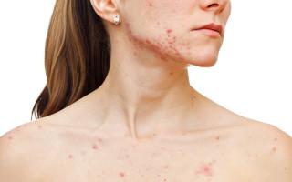 Дерматит на лице — симптомы, причины, виды, лечение