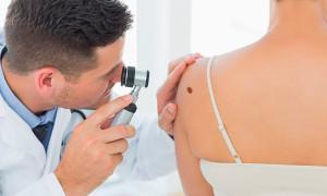 Рак кожи — причины, симптомы, стадии, виды, лечение