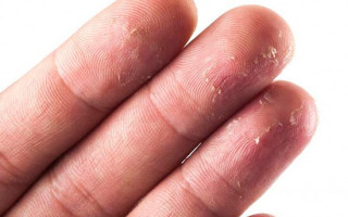 Причины и лечение шелушения кожи на пальцах рук