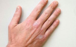 Как выглядит, почему появляется и как лечить псориаз на руках?