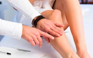 Причины, виды и лечение пигментации кожи на ногах