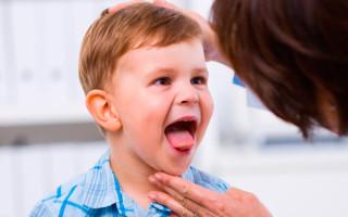 Причины и способы лечения герпетической инфекции у ребенка