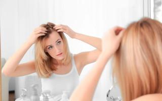 Причины и лечение сильного выпадения волос у девушек