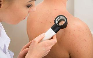 Прыщи на спине — причины, виды, дианостика, лечение
