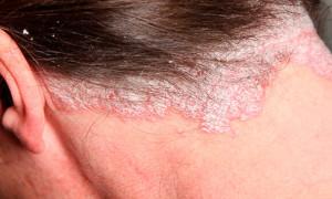 Причины появления и лечение псориаза на волосистой части головы