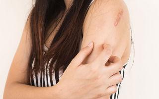 Лишай у человека — симптомы, причины возникновения, лечение