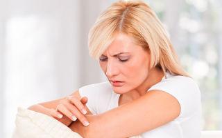 Крапивница у взрослых — причины, симптомы, лечение
