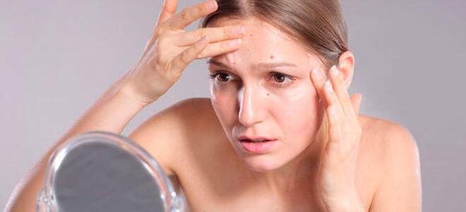 Причины и лечение лечение угрей на лице