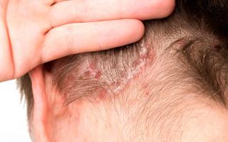 Шампуни для лечения псориаза волосистой части головы