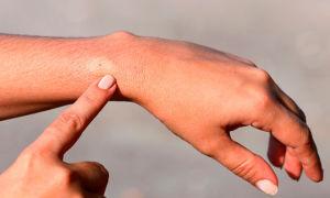 Укусы насекомых: как определить, кто укусил?