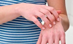 Почему облазит кожа на руках у взрослого, что с этим делать?