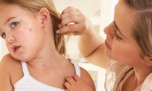 Атопический дерматит у ребенка — формы, диагностика, лечение