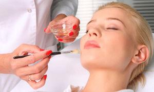 Угри на лице — причины возникновения, виды, лечение