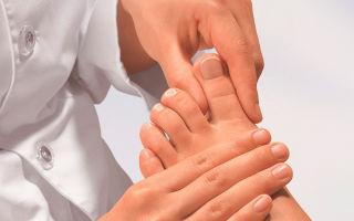 Грибок ногтей на ногах — симптомы, лечение, профилактика