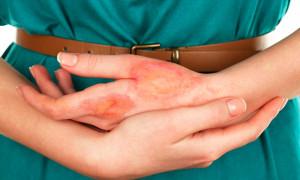 Симптомы и лечение ожога от растения борщевик