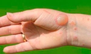 Ожоги от борщевика: фото повреждений, первая помощь и лечение