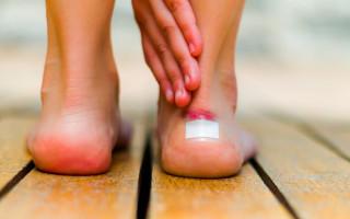 В каких случаях появляются волдыри на ногах, как от них избавиться?