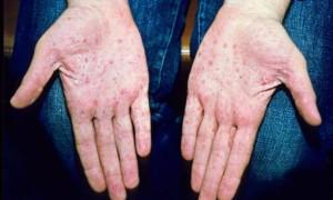 Как проявляется псориаз и как его лечить?