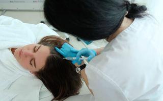 Мезотерапия для волос — порядок действий, показания к применению, стоимость