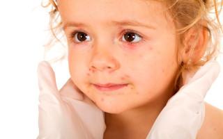 Как выглядит сыпь при краснухе на фото у детей?