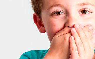 Причины, симптомы и лечение герпеса у детей