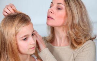 Причины и лечение стригущего лишая у ребенка
