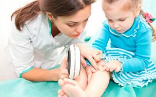 Признаки, симптомы и лечение аллергической сыпи у детей
