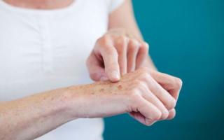 Причины и лечение красных пятен на руках, которые чешутся