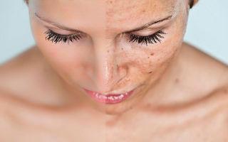 Причины появления и лечение пигментных пятен на лице