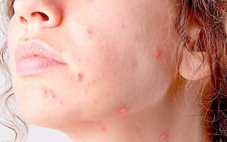 Почему возникает кератоз кожи, как лечить заболевание?