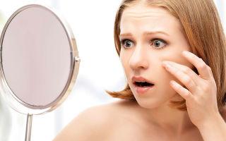 Жировики на лице — причины появления, виды, лечение, профилактика