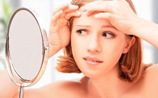 Причины образования и лечение прыщей на лице