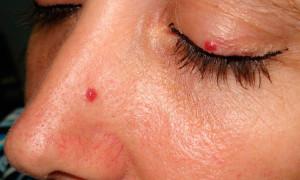 Ангиома кожи: причины, фото и методы лечения