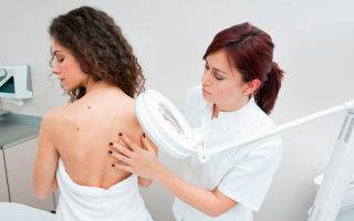 Герпес на теле — симптомы, причины, виды, лечение
