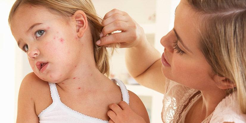 Атопический дерматит у ребенка - формы, диагностика, лечение