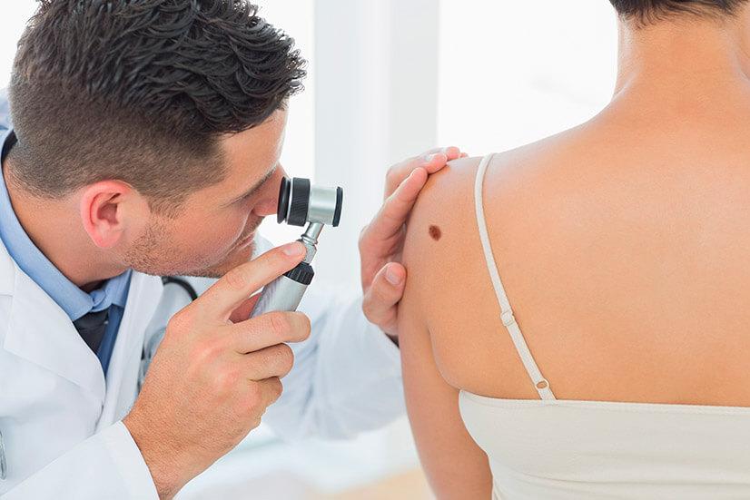 Рак кожи - причины, симптомы, стадии, виды, лечение