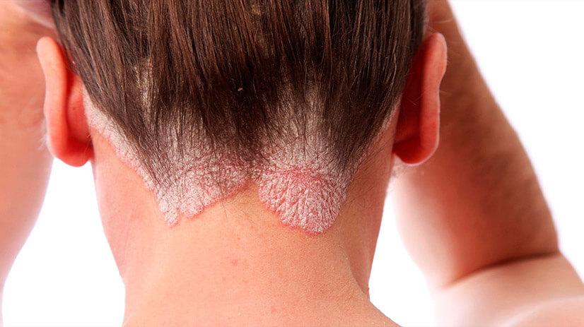 Эффективные мази для лечения псориаза