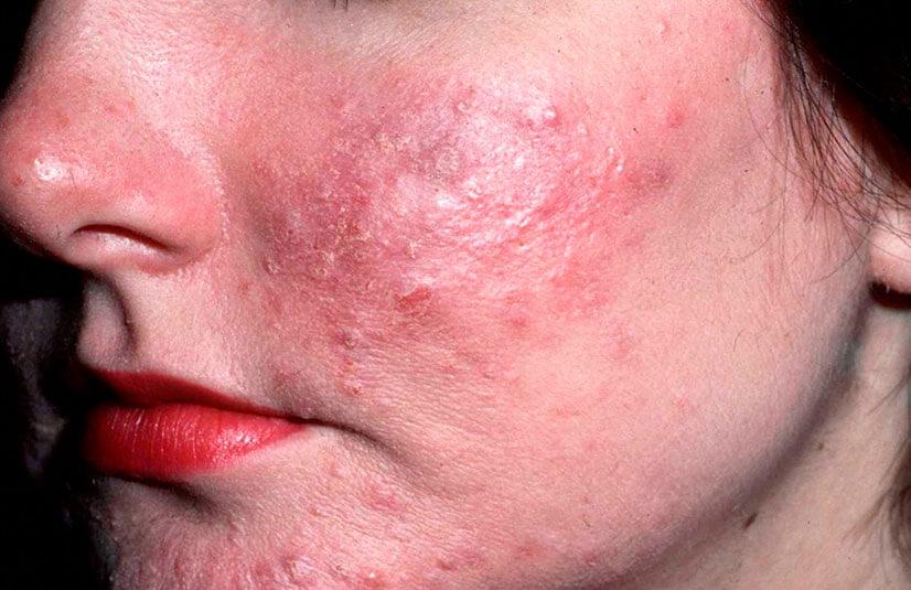 Как выглядит демодекоз у людей на фото и как его лечить?