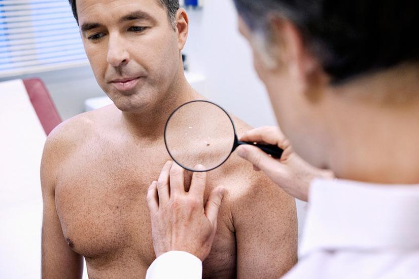 Как протекает ВПЧ у мужчин и чем его лечить