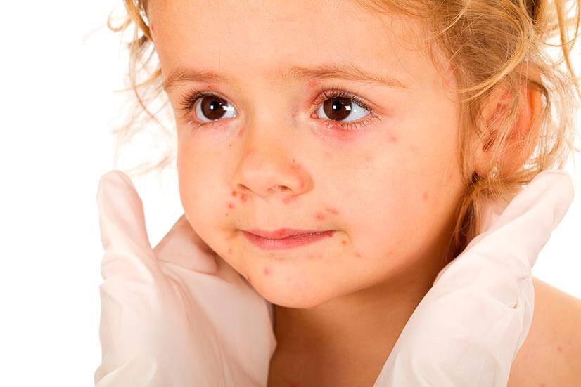 Краснуха у детей симптомы и лечение, инкубационный период